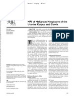 MRI of Malignant Neoplasms of the Utrus and Cervix