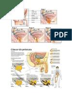 CANCER DE PROSTATA.docx