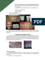 Alteraciones en El Desarrollo Dental