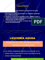 leucemias1