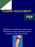rodilla recurvatum
