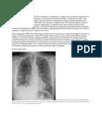 Lung Metastase