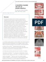 Reporte de Caso de Mordida Cruzada Posterior_ Descripción de Un Protocolo de Tratamiento Efectivo