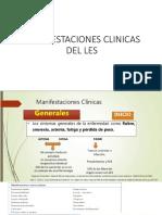 Manifestaciones Clinicas Del Les