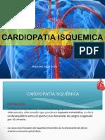 cardiopatiaisquemica