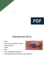 Ppt Dry Eyes