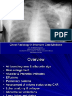 chestradiologyinintensivecare-111205133931-phpapp01