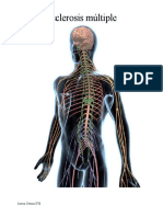 Esclerosis múltiple.docx