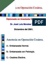 Anestesia en Cesárea