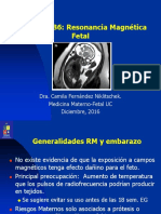 Resonancia Magnética Fetal