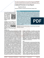 Naproxen Induced Psoriasis A Case Report