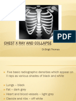 Chest x ray and collapse.pptx