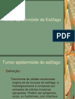 CA Esofago e Estômago