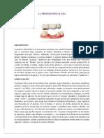 La Prótesis Dental Fija