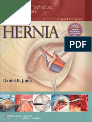 prostata intervento laser spine institute