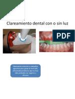 clareamiento dental