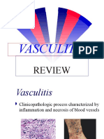 Vasculitis Review