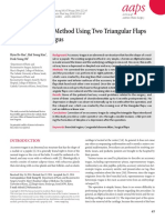triangular flap