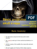 Basic Projection of Skull X-rays