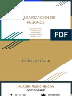 REGULARIZACIÓN DE REBORDE.pdf