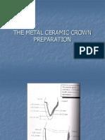PFM Crown Preparation