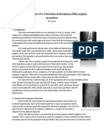 Workflow Analysis of a Total Knee Arthroplasty