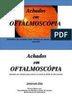 Achados em oftalmoscopia