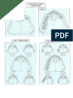 clasificacion de kennedy y modificaciones.docx