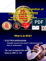 5 Arrhythmia Recognition