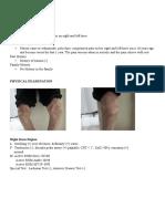 OA Knee Bilateral KL IV