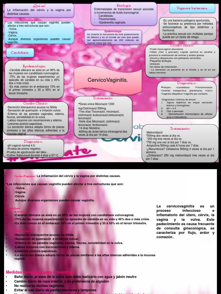 causas de uretritis inespecifica