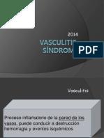 vasculitis 09.ppt