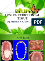 The Effect of Tooth Loss on Periodontal Tissue