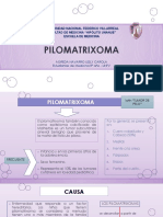 Pilomatrixoma
