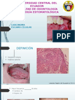 Carcinoma Escamo Celular Modificado