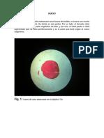 Desarrollo Embrionario de La Rana