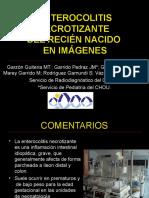 16_ENTEROCOLITIS_NECROTIZANTE2.ppt