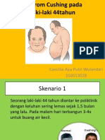 Ppt 21 Cushing Sindrom