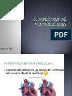6. Hipertrofia ventricular.pdf