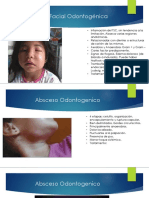 Celulitis Facial Odontogénica.pptx