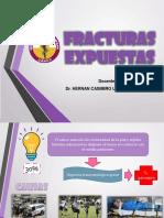 FRACTURAS-EXPUESTAS.pdf