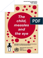 Child Measles Eye Eng 300