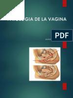 patologia de la vagina