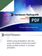 Keradangan & Infeksi Periapikal-Tomy 4&6 November 2014