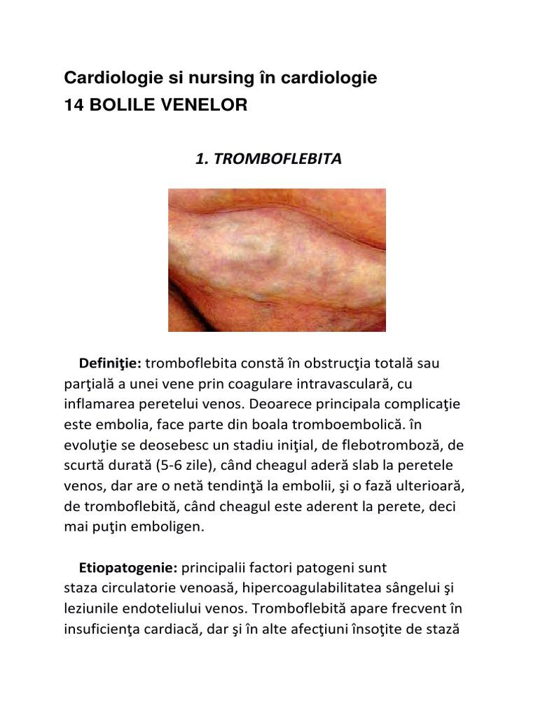 simptome de stază venoasă
