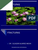 FRACTURAS GENERALIDADES