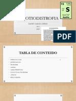 Tricotiodistrofia Danny GarcÍa