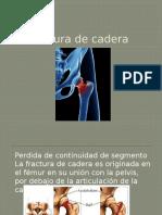Fractura de cadera .pptx