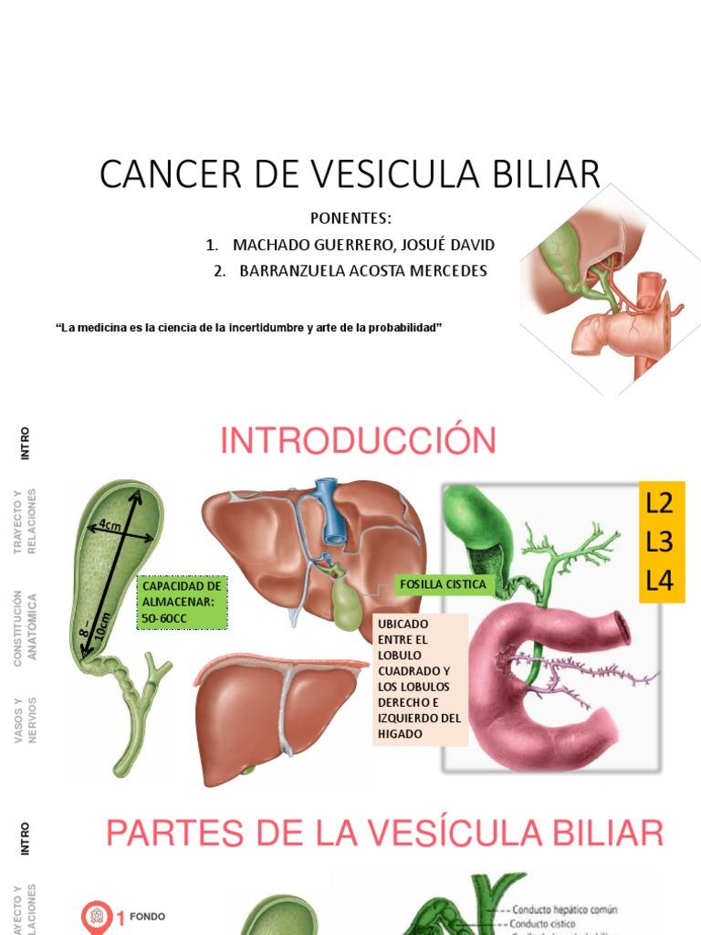 Cancer vesicula biliar diagnostico