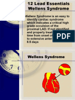 New Wellens Syndrome